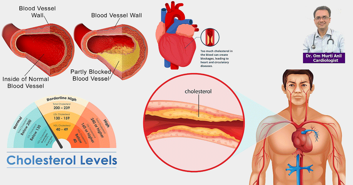 High cholesterol and triglycerides Risk and ways to Control